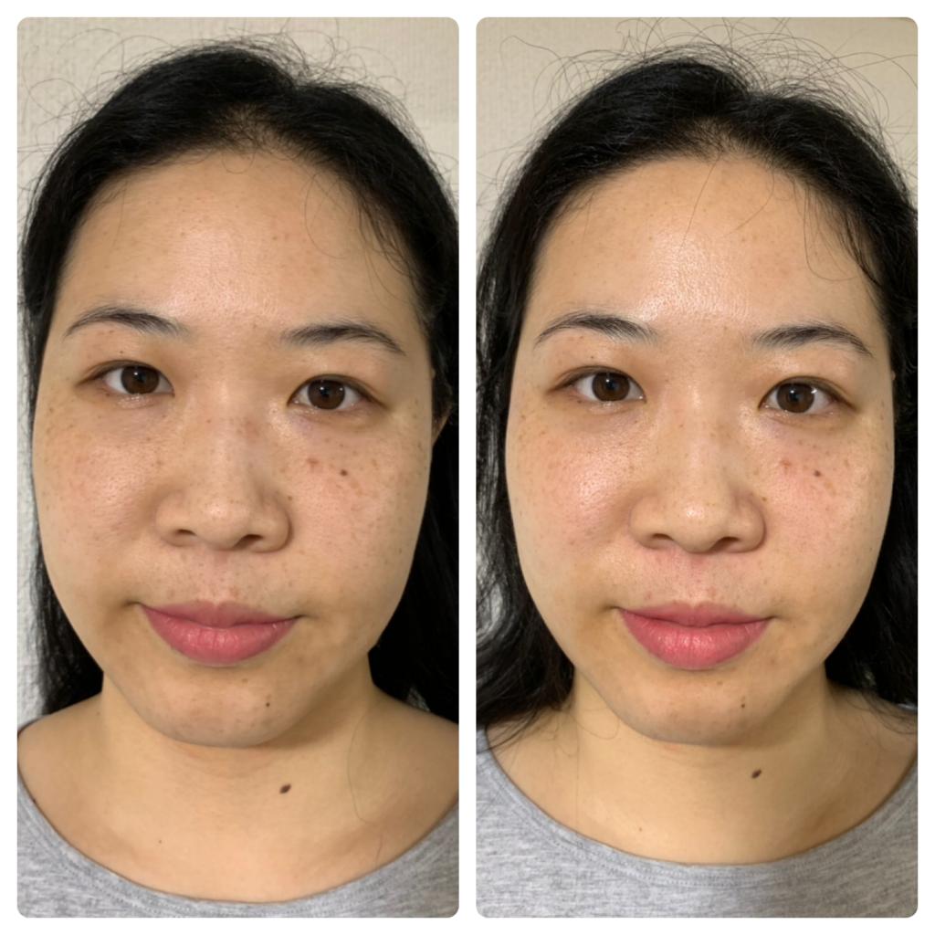 小顔施術のイメージ
